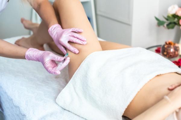 mesoterapia celulitis