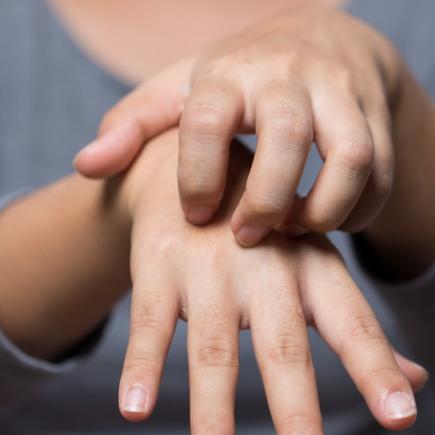 dermatitis atopica manos tratamiento