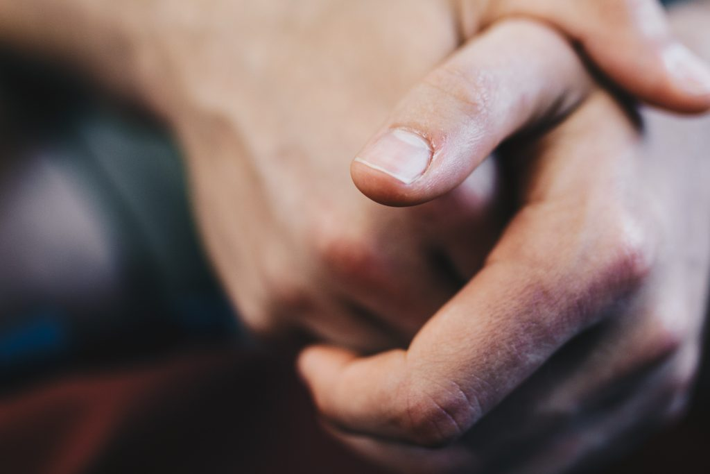 eczema en las manos